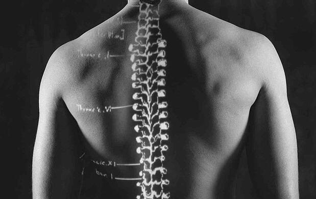 Cuida tu espalda, elige fisioterapeuta