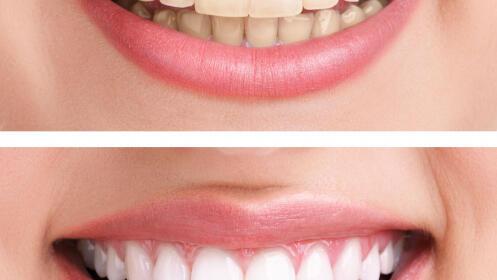 Blanqueamiento dental de 6 tonos + limpieza y pulido