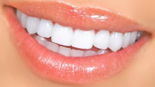 Blanqueamiento dental con Led fría Gros