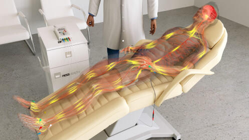 3, 5 o 10 sesiones de neuromodulación no invasiva NESA