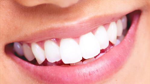 Blanqueamiento dental con peróxido de hidrógeno